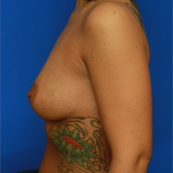 31- year old woman treated with Breast Implants before 3400650