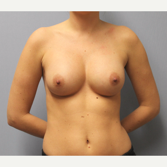 Natural Breast Augmentation with Silicone implants after 3441568