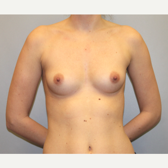 Natural Breast Augmentation with Silicone implants before 3441568