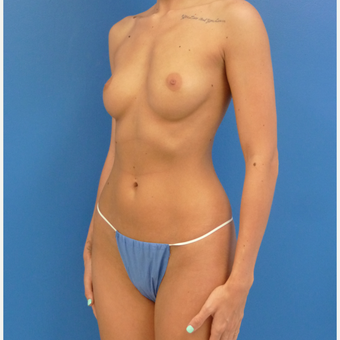 26 y.o. female – Breast Augmentation – 550cc Moderate Profile Saline Implants. before 3782702
