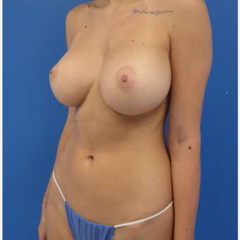 26 y.o. female – Breast Augmentation – 550cc Moderate Profile Saline Implants. after 3782702