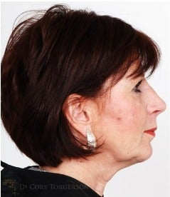 45-54 year old woman treated with Rhinoplasty after 3259981