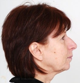 45-54 year old woman treated with Rhinoplasty before 3259981