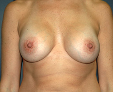 Breast Implants after 3545060
