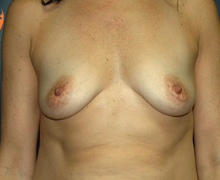 Breast Implants before 3545060