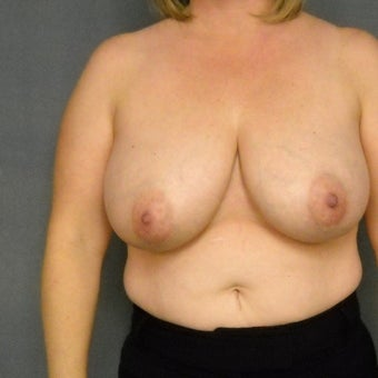 35-44 year old woman treated with Breast Reduction before 1576373