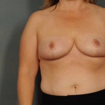 35-44 year old woman treated with Breast Reduction after 1576373
