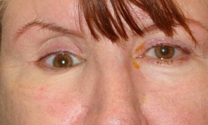 A middle aged woman with sunken right eye from trauma who underwent surgery with orbital implant.