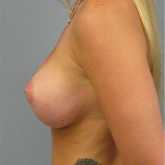 28 year old woman treated with Breast Augmentation after 3467323