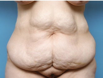 42 Year Old Female Treated For Abdominal Pannus After Weight Loss before 1118965