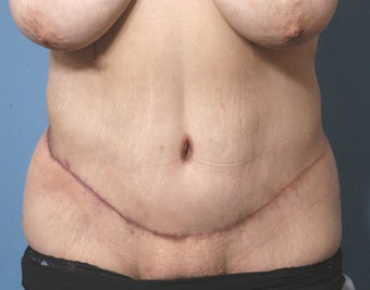 42 Year Old Female Treated For Abdominal Pannus After Weight Loss after 1118965