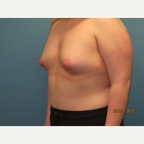 25-34 year old woman treated with MTF Breast Augmentation before 2486802