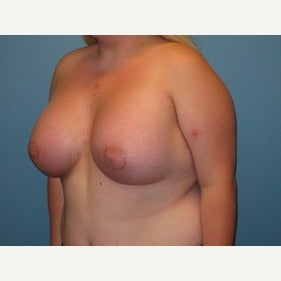 25-34 year old woman treated with MTF Breast Augmentation after 2486802