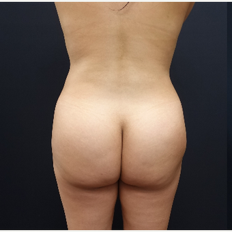 25-34 year old woman treated with Tumescent Liposuction before 3286509