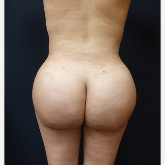 25-34 year old woman treated with Tumescent Liposuction after 3286509