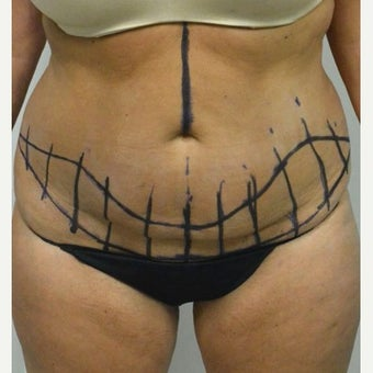 45-54 year old woman treated with Mini Tummy Tuck before 2211381