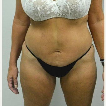 45-54 year old woman treated with Mini Tummy Tuck after 2211381