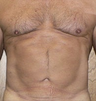 VASER liposuction of abdominal wall after 384689
