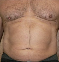 VASER liposuction of abdominal wall before 384689