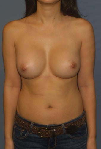 Breast omplants after 1063933