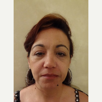 45-54 year old woman treated with Liquid Facelift before 3744566