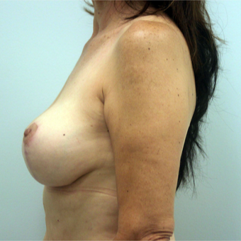 35-44 year old woman treated with Breast Lift with Implants after 3366495