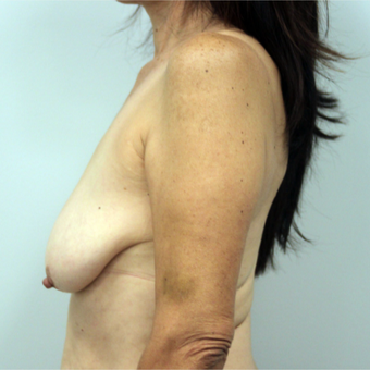 35-44 year old woman treated with Breast Lift with Implants before 3366495