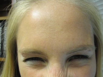 Dysport in the Forehead and Glabella a botulinum toxin treatment 1043748