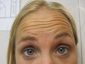 Dysport in the Forehead and Glabella a botulinum toxin treatment before 1043748