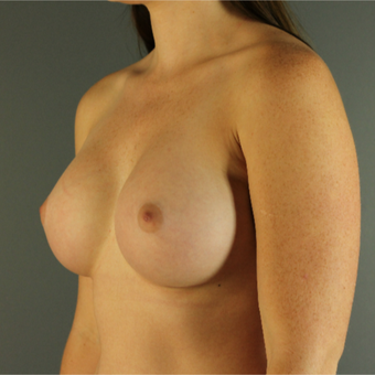 18-24 year old woman treated with Breast Augmentation after 3670236