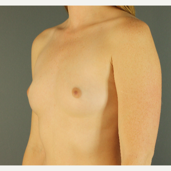 18-24 year old woman treated with Breast Augmentation before 3670236