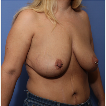 35-44 year old woman treated with Breast Lift before 3505931