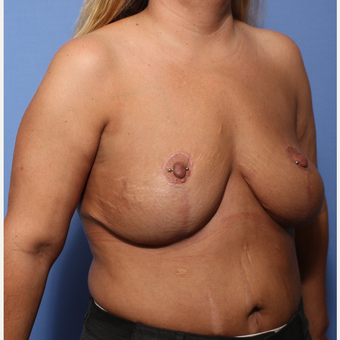 35-44 year old woman treated with Breast Lift after 3505931