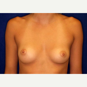 18-24 year old woman treated with Breast Augmentation before 3005789