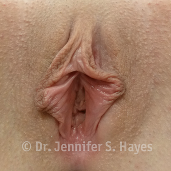 25-34 year old woman treated with Labiaplasty before 3459360