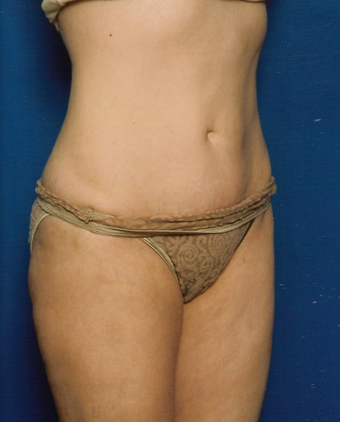 Tummy Tuck after 1252253