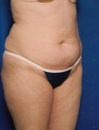 Tummy Tuck before 1252253