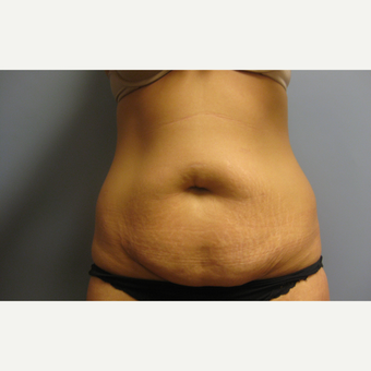 25-34 year old woman treated with Tummy Tuck before 3108202