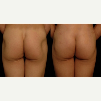 25-34 year old woman treated with Butt Implants before 3659487