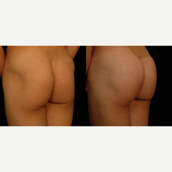 25-34 year old woman treated with Butt Implants after 3659487
