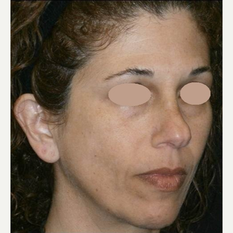 45-54 year old woman treated with Skin Lightening before 3089505