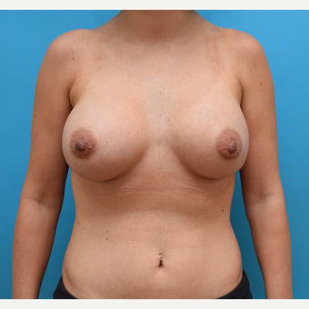 25-34 year old woman treated with Breast Augmentation after 3042155