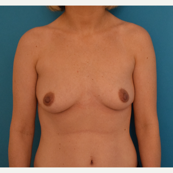 25-34 year old woman treated with Breast Augmentation before 3042155