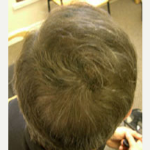53 year old male treated with Hair Transplant after 3839268