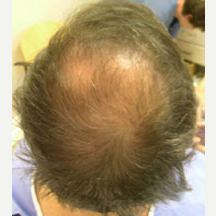 53 year old male treated with Hair Transplant before 3839268