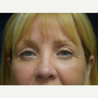 45-54 year old woman treated with Eye Bags Treatment after 3179536