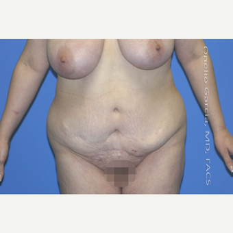 "45-54 year old woman treated with Body Lift-Circumferential ""Belt"" lipectomy + Vaser Liposuction before 3041522"