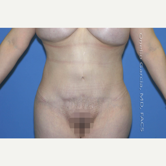 "45-54 year old woman treated with Body Lift-Circumferential ""Belt"" lipectomy + Vaser Liposuction after 3041522"