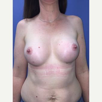 35-44 year old woman treated with Breast Augmentation after 3759809