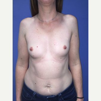 35-44 year old woman treated with Breast Augmentation before 3759809